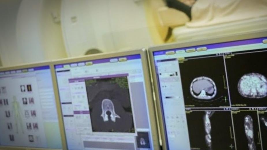 Компьютерная рентгенография