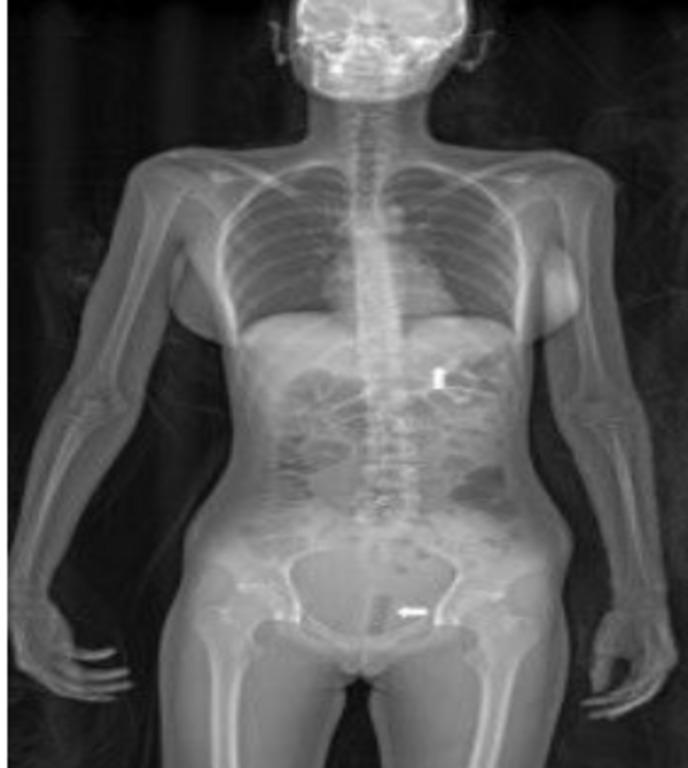 полный рентген тела