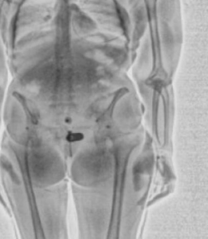 сканеры тела