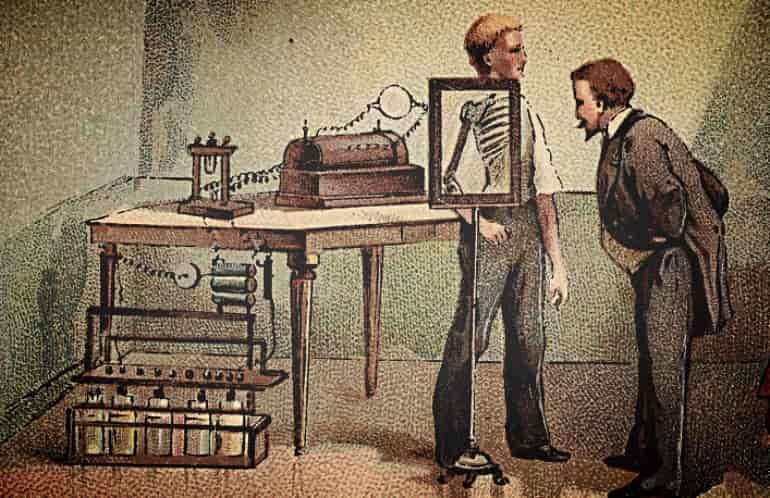 История открытия рентгенографии