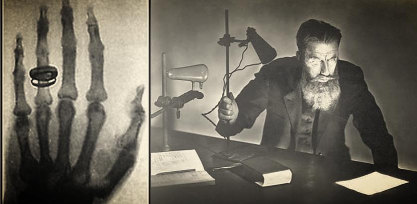 история рентгенографии гамма лучи