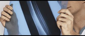 Процесс проявления рентгеновской пленки