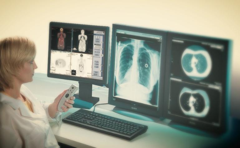 современное состояние рентгенографии