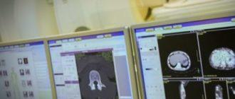 Компьютерная рентгенография и цифровая